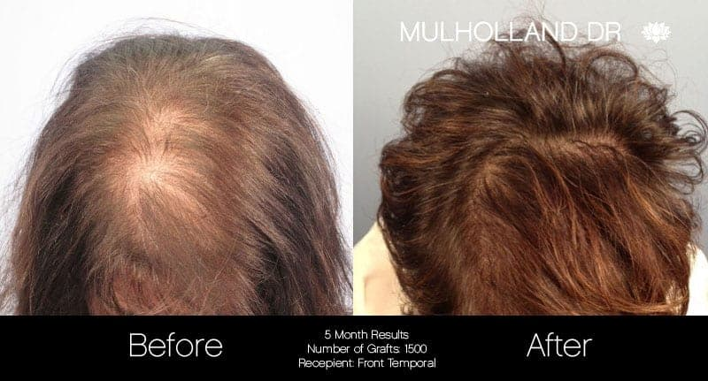 FUE Hair Female - Before and After Gallery – Photo 1