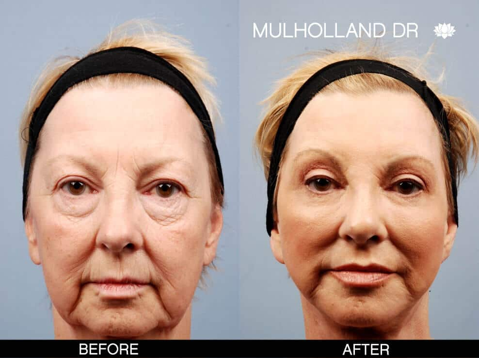 Cheek Lift - Before and After Gallery – Photo 11