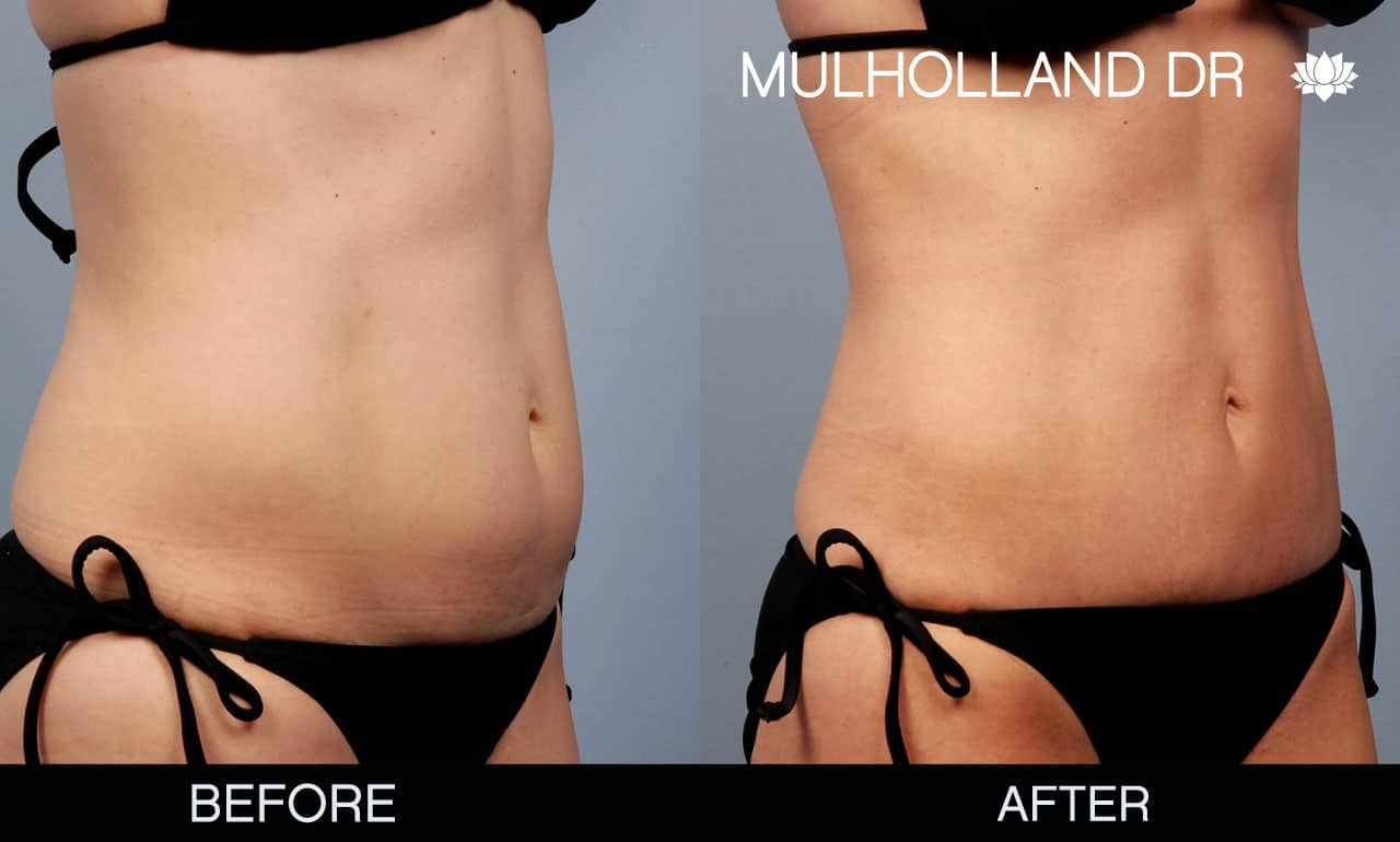 Mini Tummy Tuck - Before and After Gallery – Photo 2