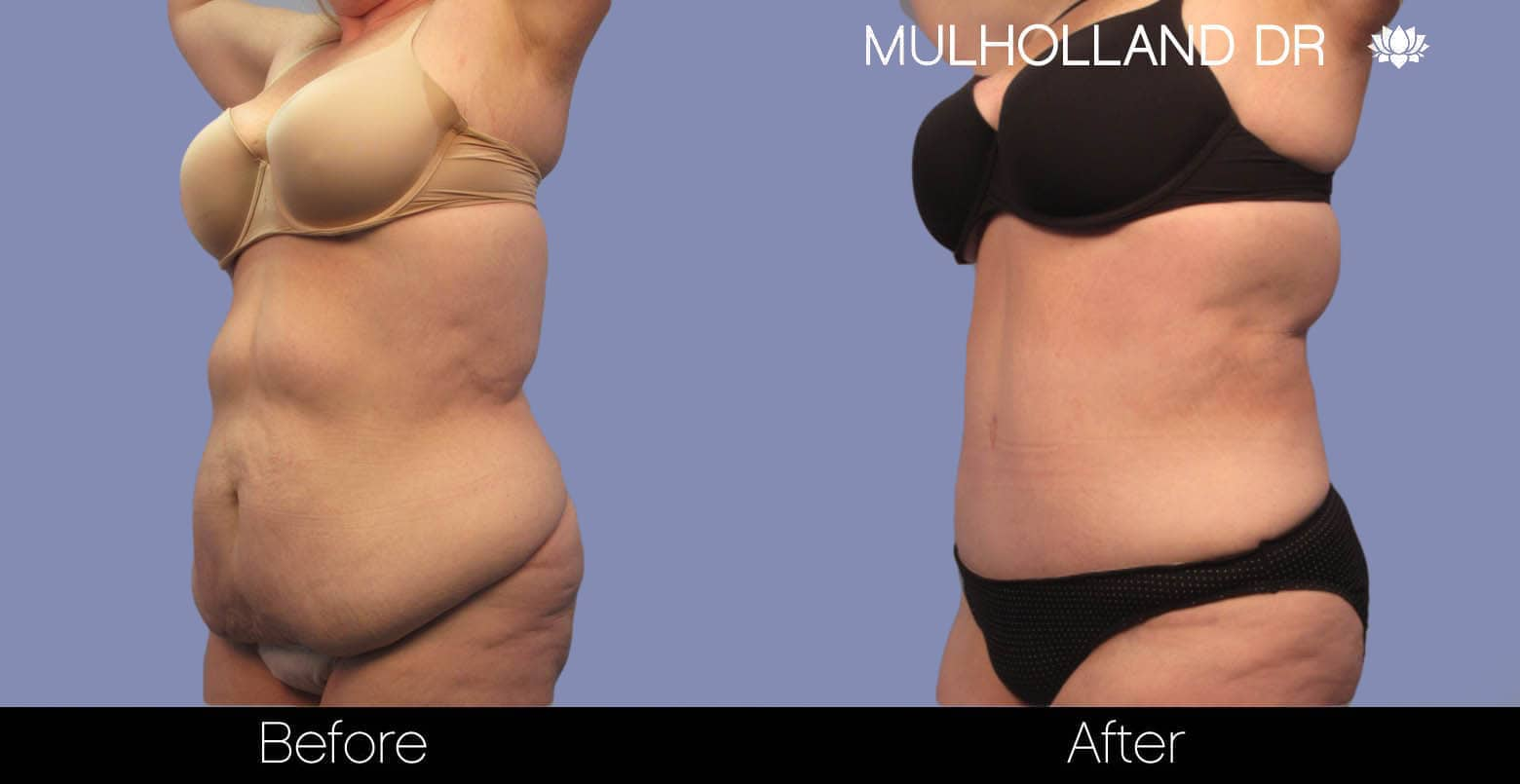 Tumescent Liposuction - Before and After Gallery – Photo 2
