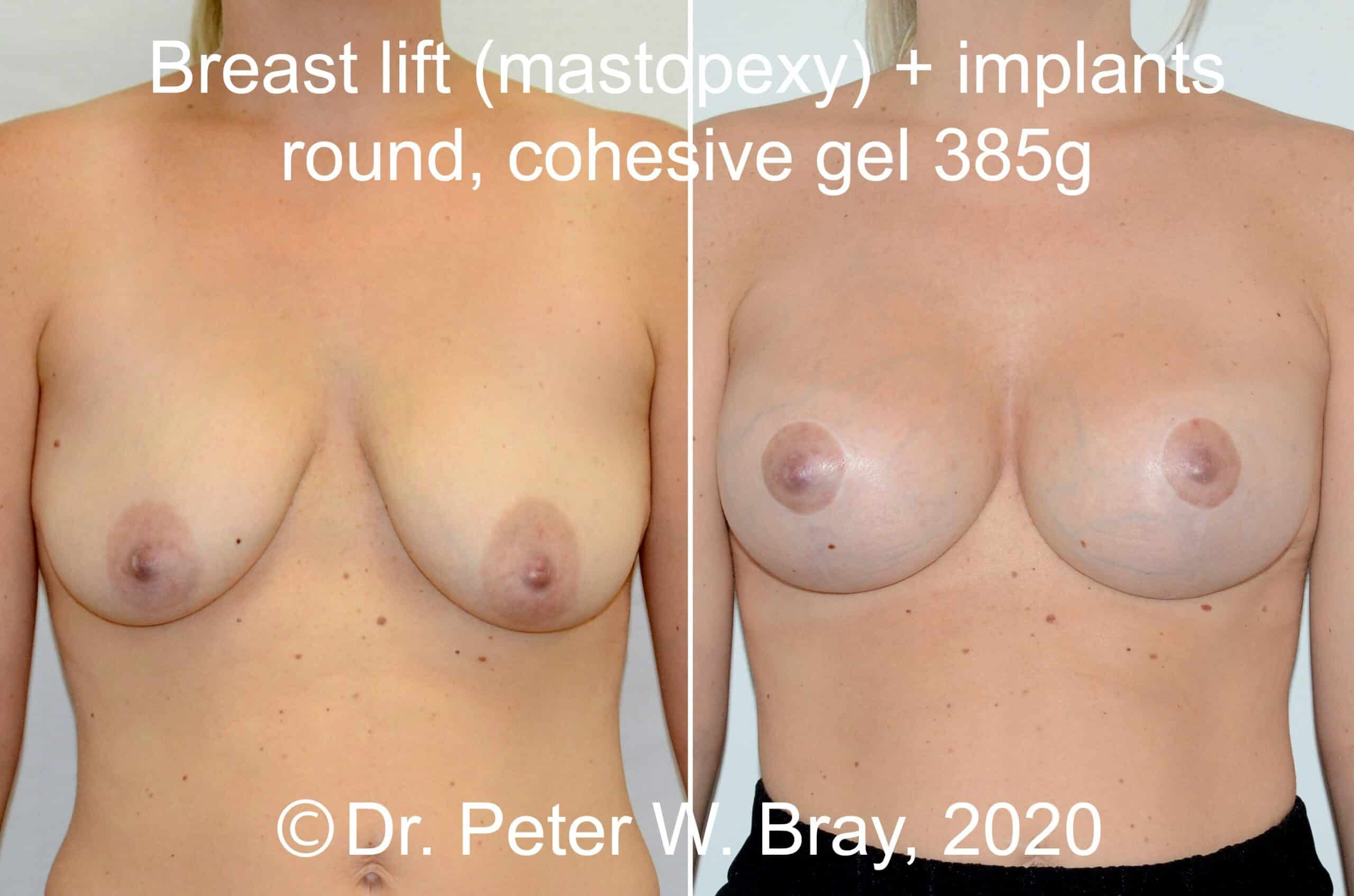 Breast Lift - Before and After Gallery – Photo 2