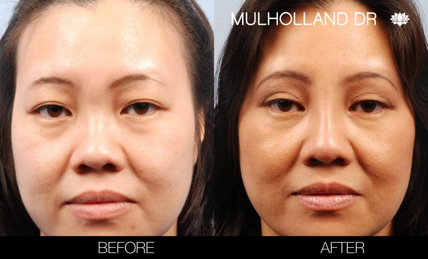 Asian Blepharoplasty - Before and After Gallery – Photo 2