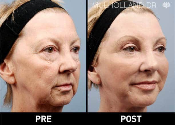 Facial Fat Transfer - Before and After Gallery – Photo 2