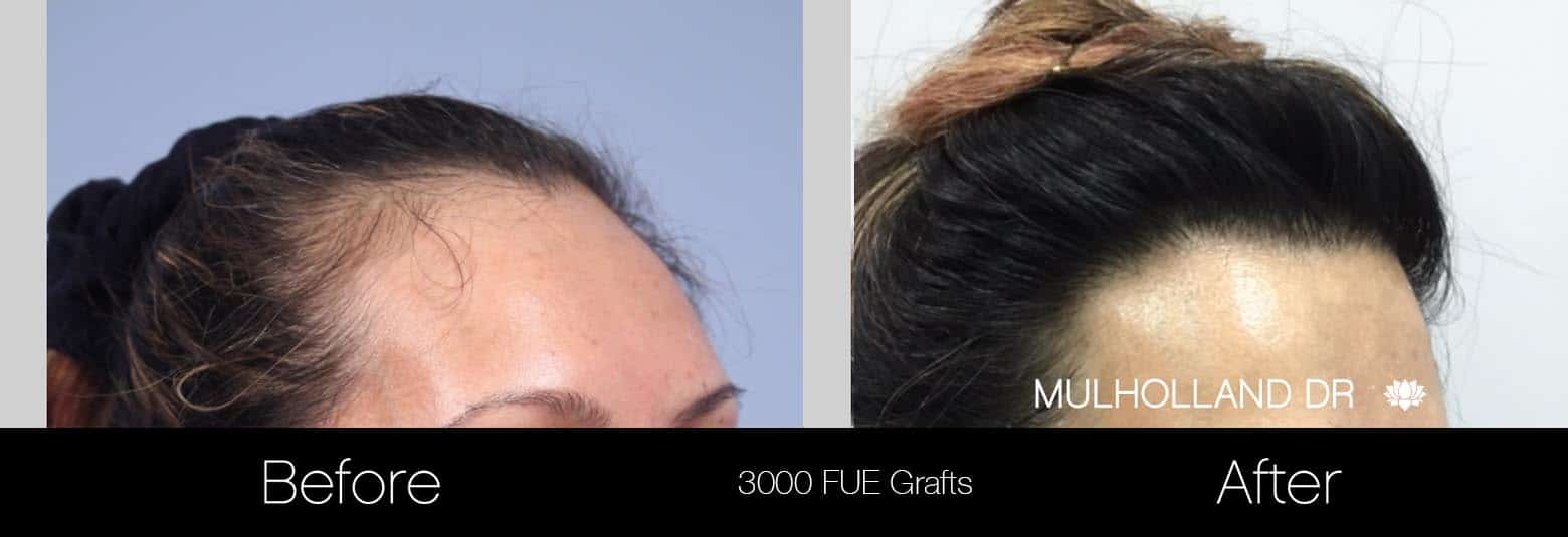 FUE Hair Female - Before and After Gallery – Photo 2
