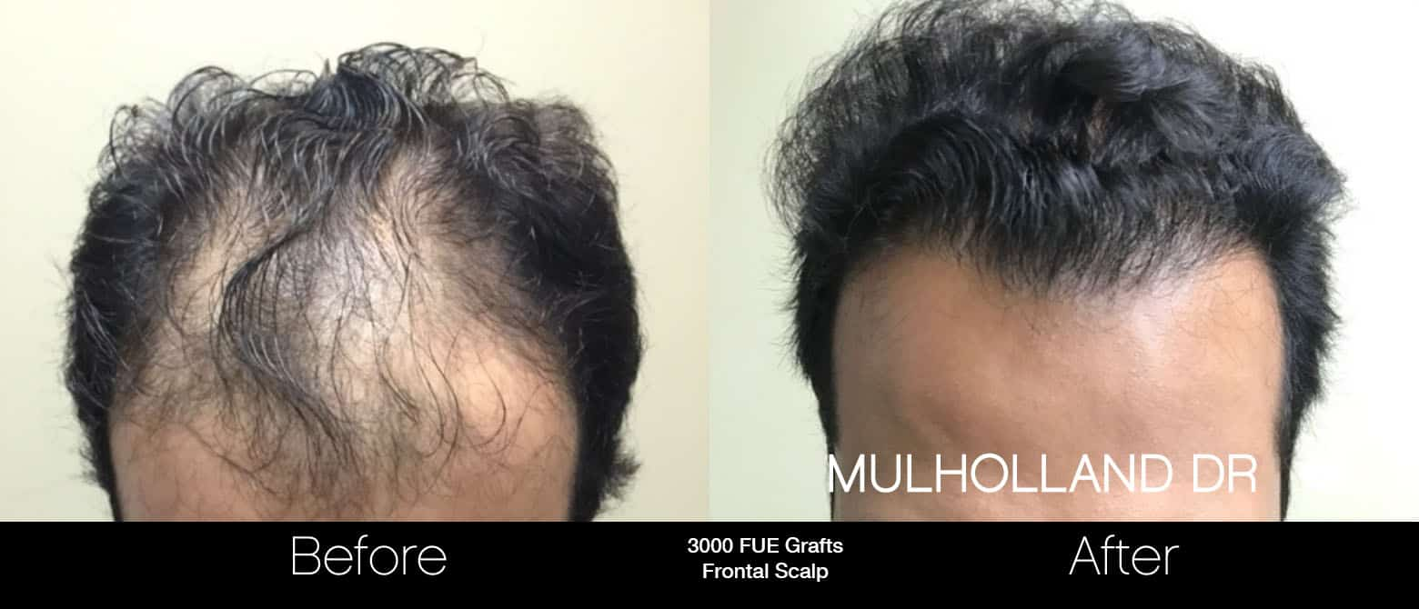 FUE Hair Male - Before and After Gallery – Photo 2