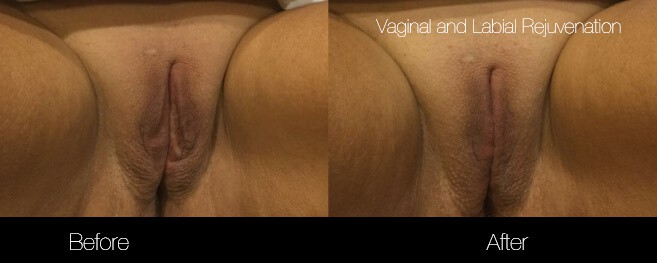 Vaginal Rejuvenation - Before and After Gallery – Photo 2
