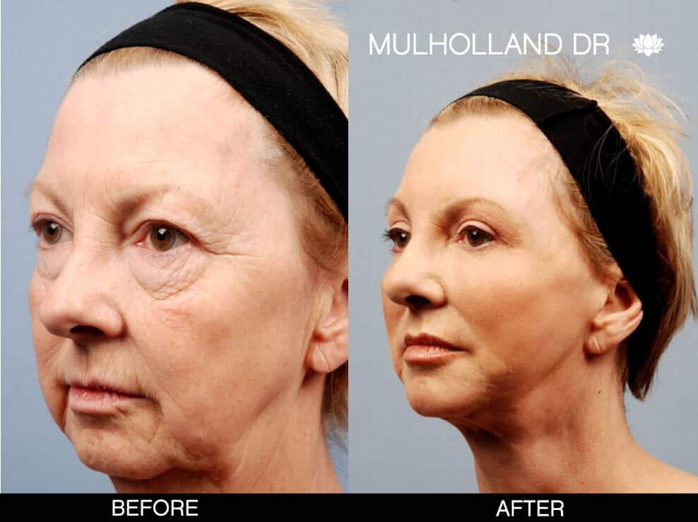 Cheek Lift - Before and After Gallery – Photo 12