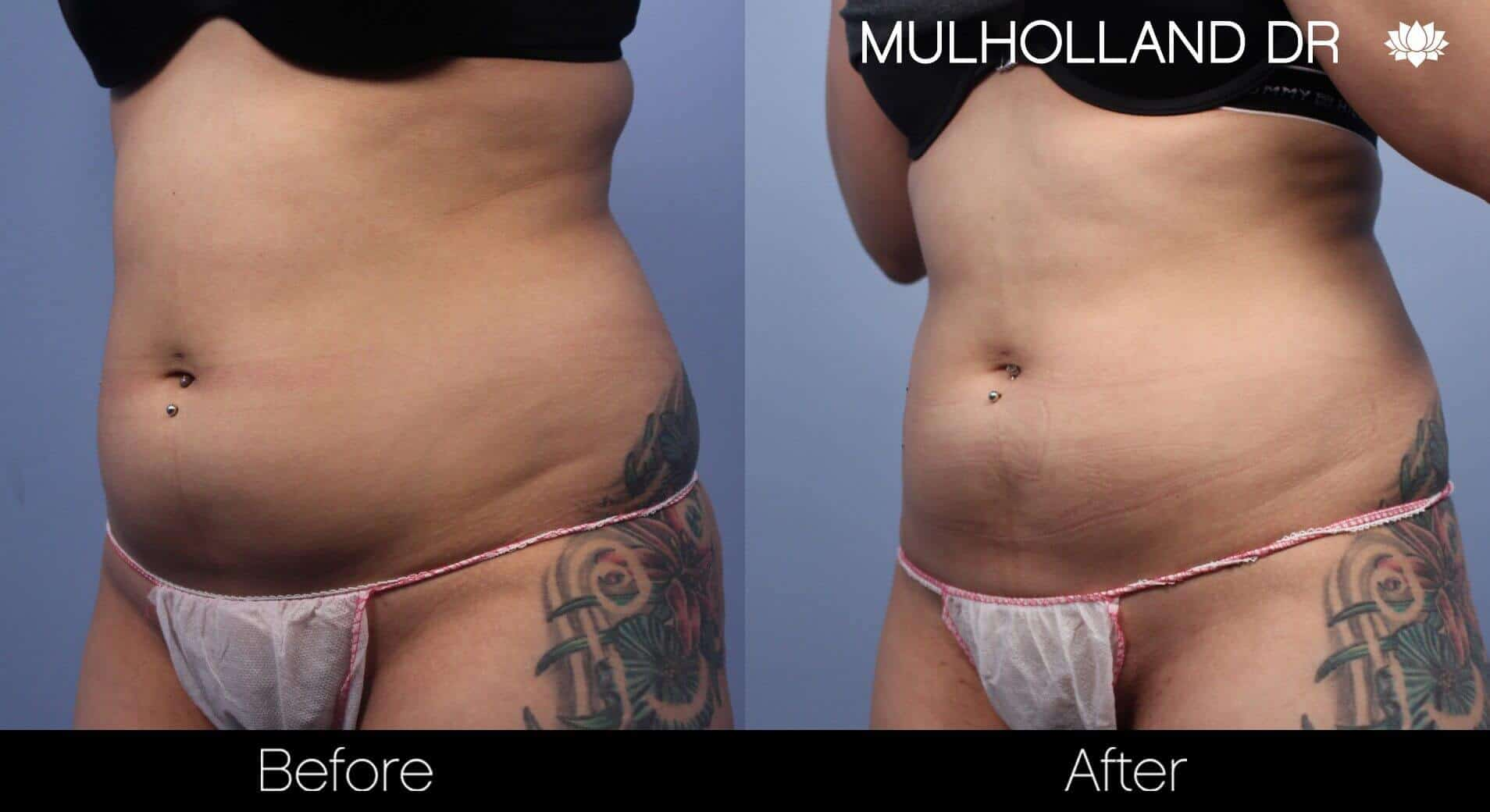 Body Contouring and Reshaping - Before and After Gallery – Photo 3
