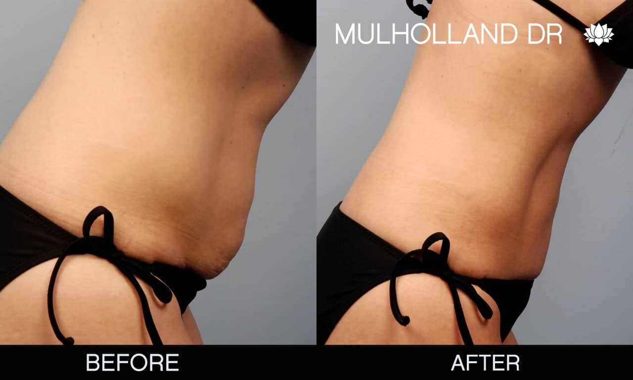 Mini Tummy Tuck - Before and After Gallery – Photo 3
