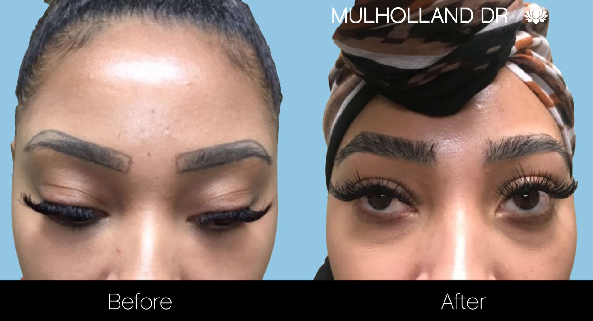 Eyebrows FUE - Before and After Gallery – Photo 3