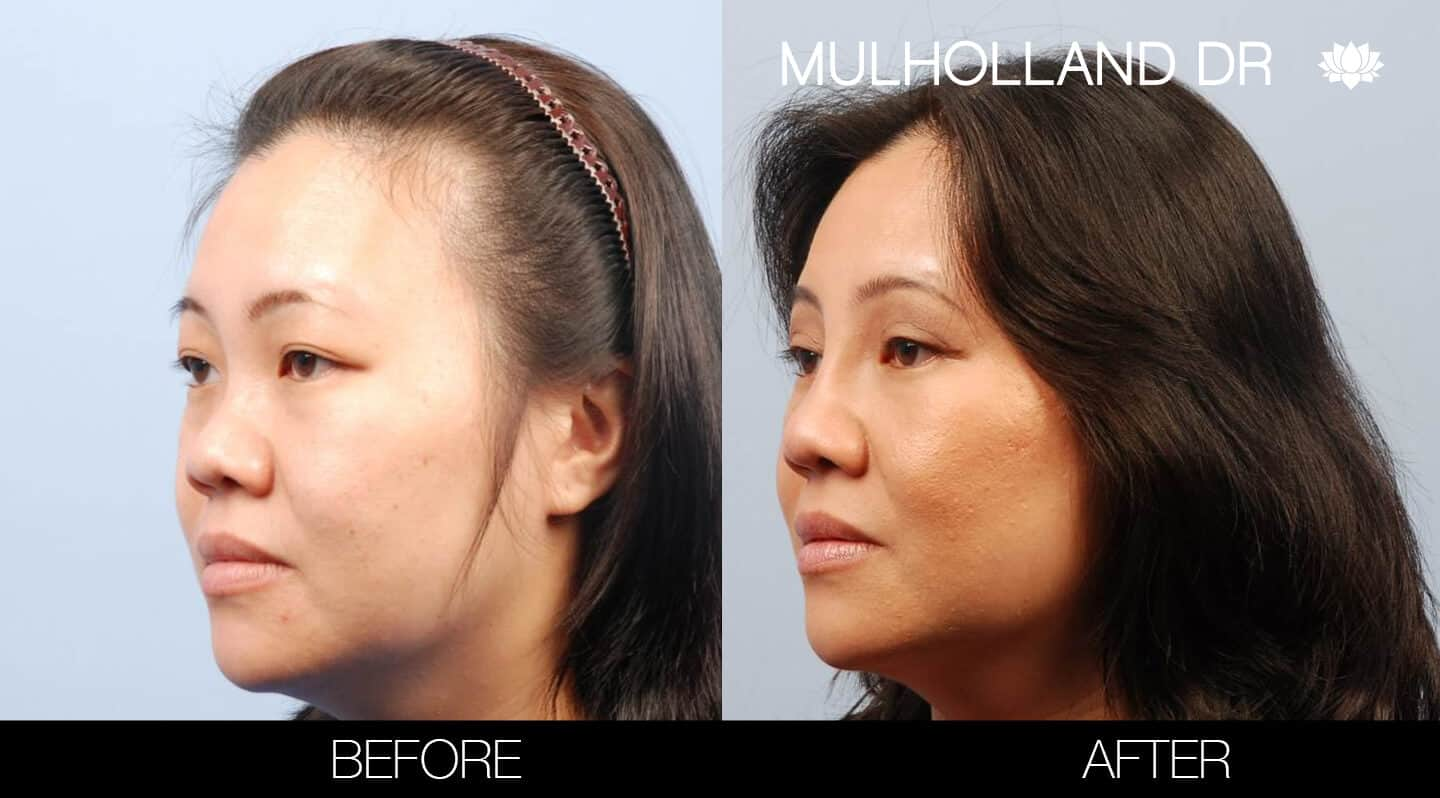 Asian Blepharoplasty - Before and After Gallery – Photo 3