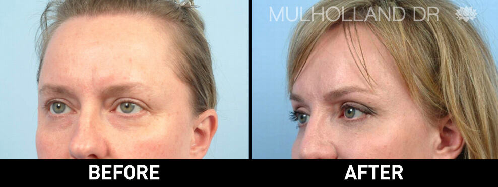 Brow Lift - Before and After Gallery – Photo 3