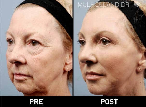 Facial Fat Transfer - Before and After Gallery – Photo 3