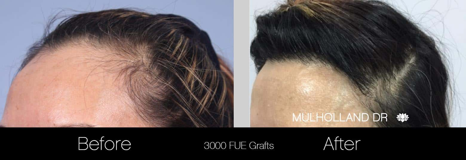 FUE Hair Female - Before and After Gallery – Photo 3