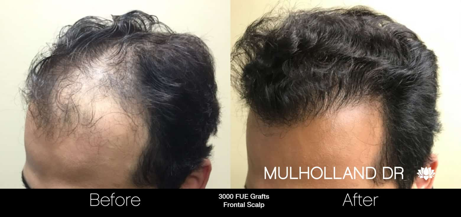 FUE Hair Male - Before and After Gallery – Photo 3