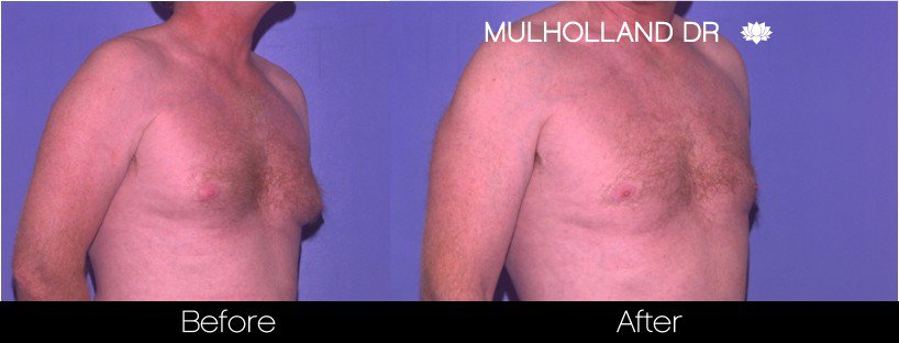 Gynecomastia Surgery (Male Breast Reduction) - Before and After Gallery – Photo 3
