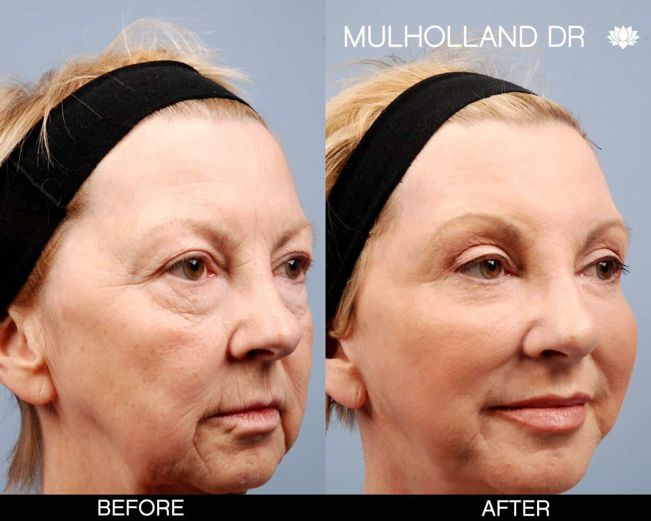 Cheek Lift - Before and After Gallery – Photo 13