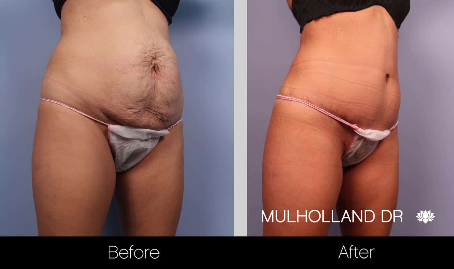 Mini Tummy Tuck - Before and After Gallery – Photo 4