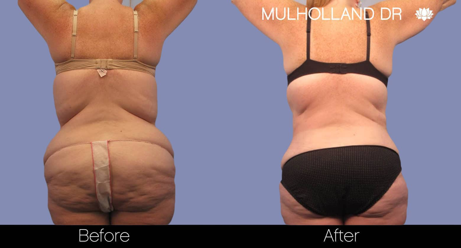 Tumescent Liposuction - Before and After Gallery – Photo 4
