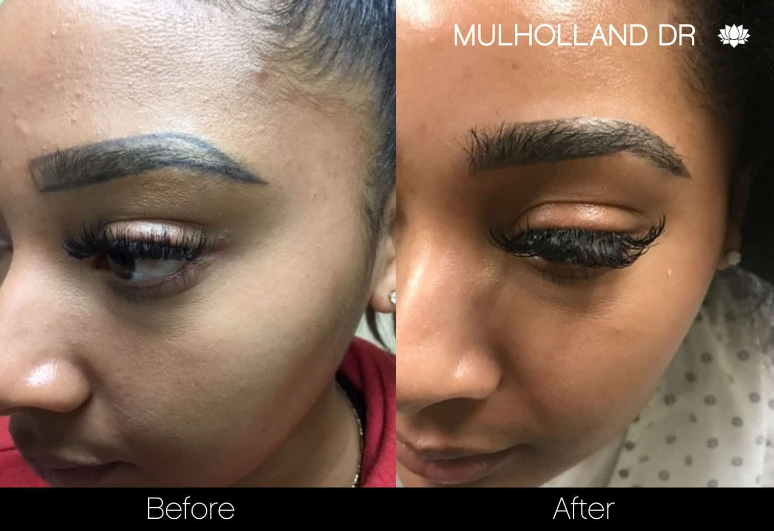 Eyebrows FUE - Before and After Gallery – Photo 4