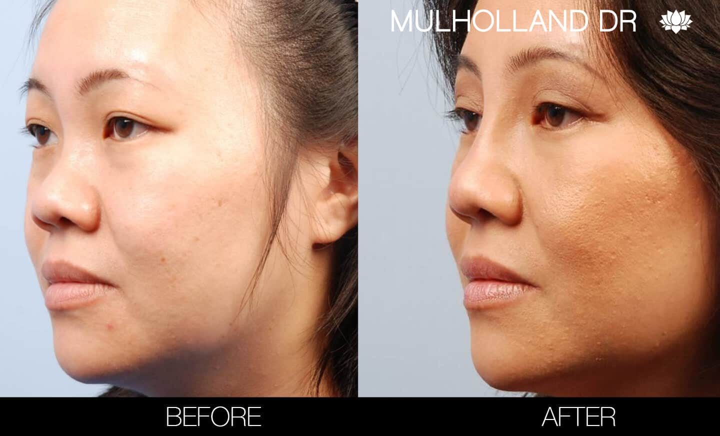 Asian Blepharoplasty - Before and After Gallery – Photo 4