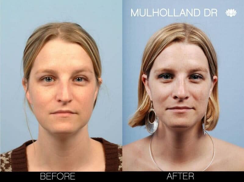 Rhinoplasty - Before and After Gallery – Photo 4