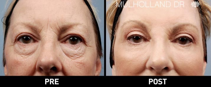 Facial Fat Transfer - Before and After Gallery – Photo 4