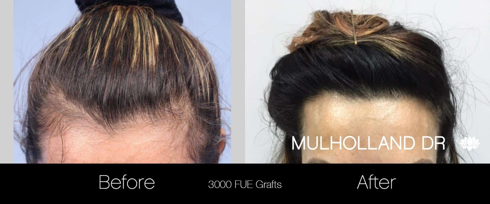 FUE Hair Female - Before and After Gallery – Photo 4