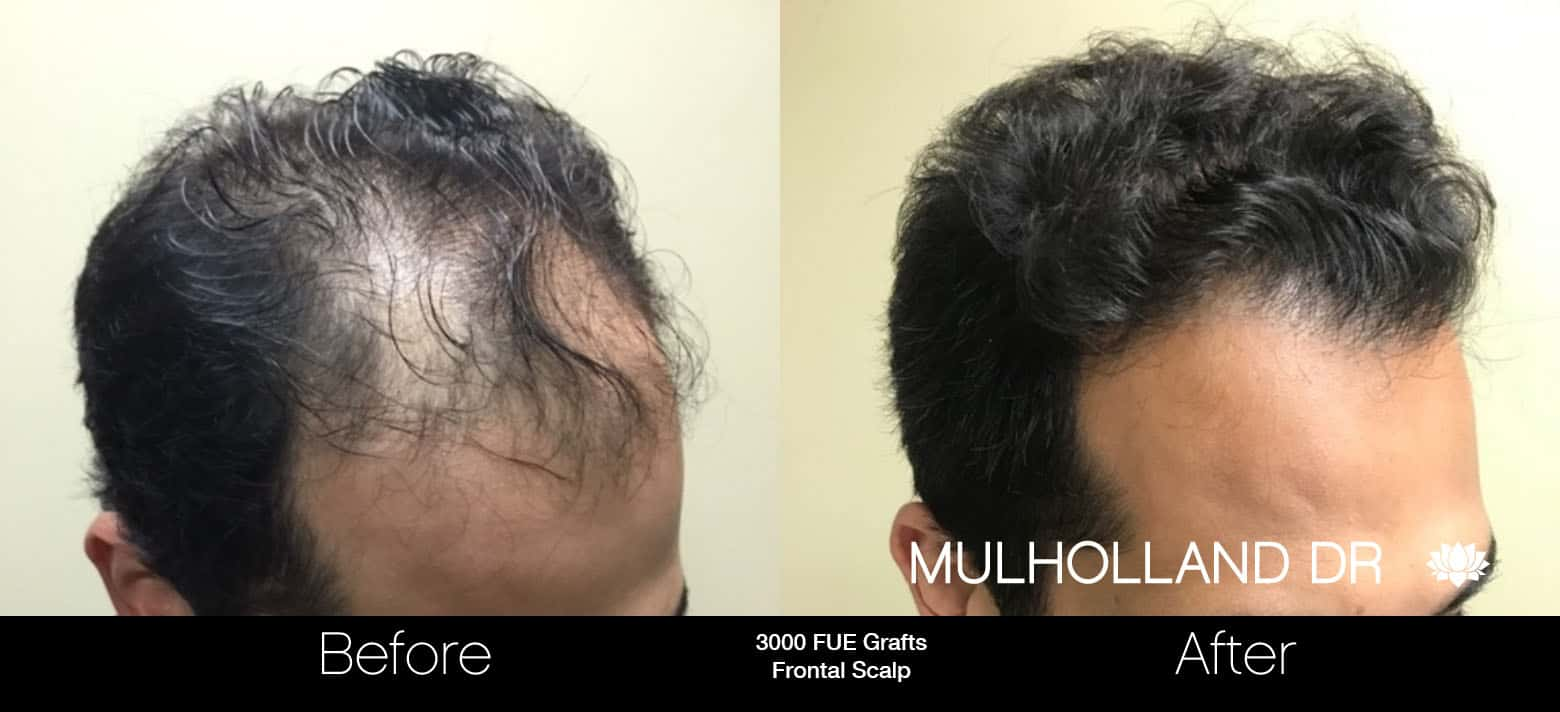 FUE Hair Male - Before and After Gallery – Photo 4