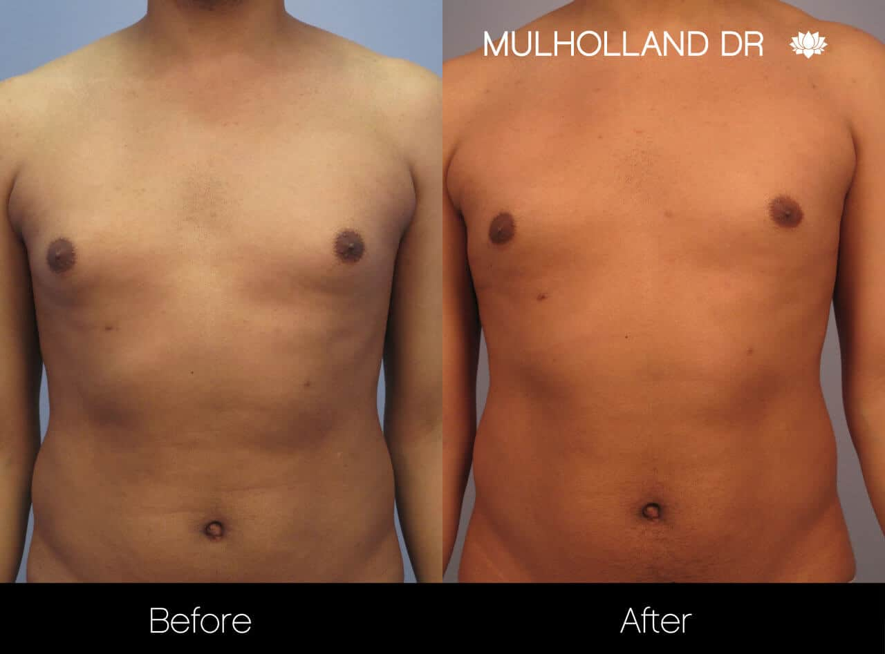 Gynecomastia Surgery (Male Breast Reduction) - Before and After Gallery – Photo 7