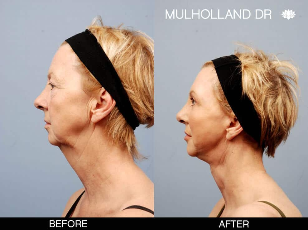 Cheek Lift - Before and After Gallery – Photo 14