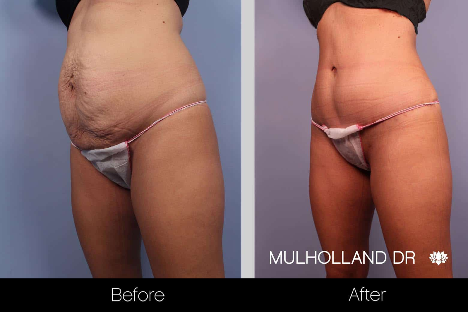 Mini Tummy Tuck - Before and After Gallery – Photo 5