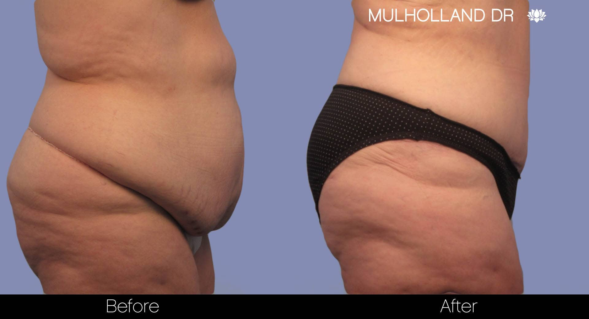 Tumescent Liposuction - Before and After Gallery – Photo 5