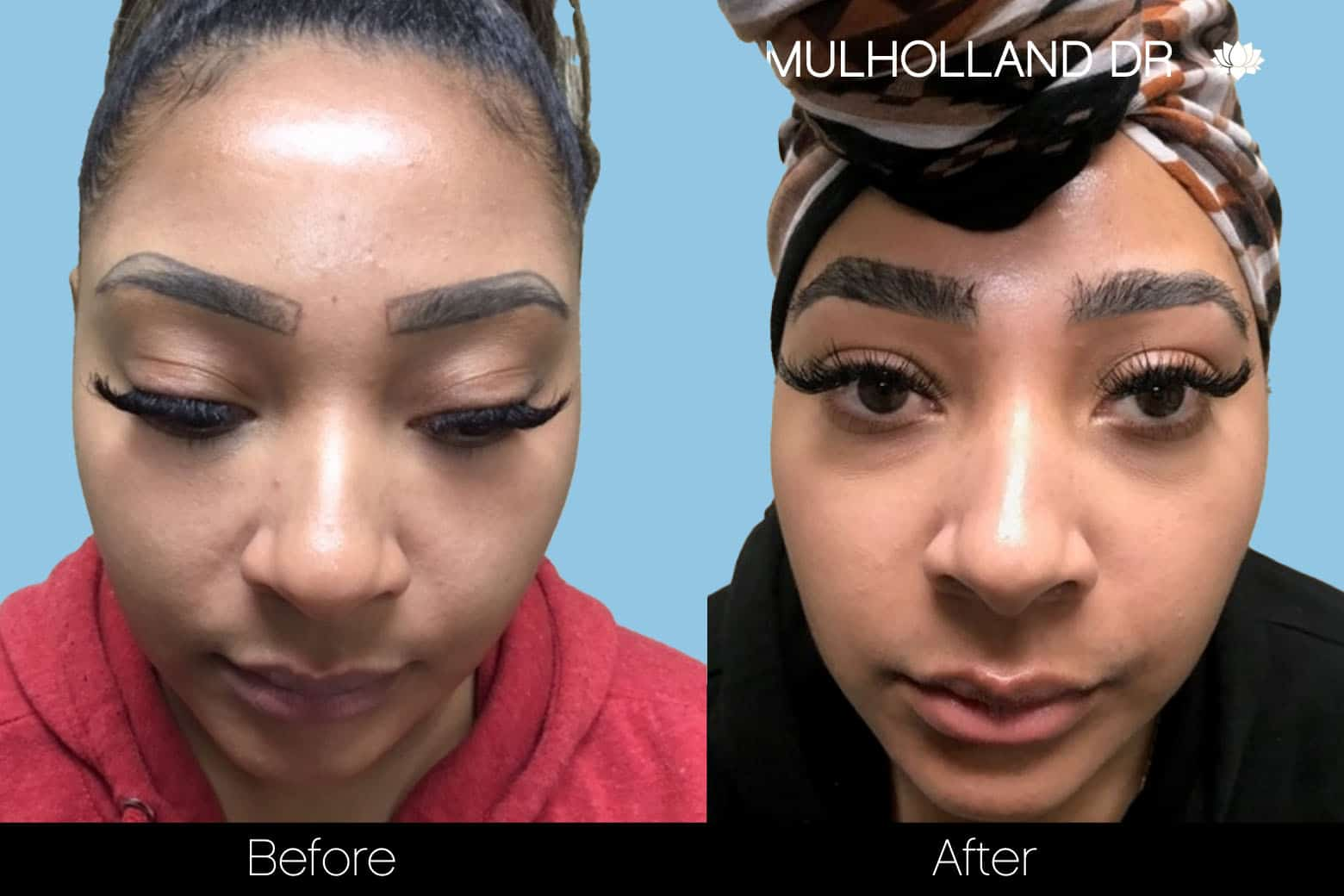Eyebrows FUE - Before and After Gallery – Photo 5