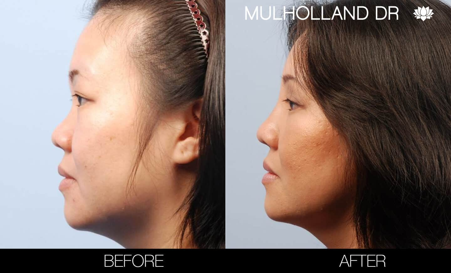 Asian Blepharoplasty - Before and After Gallery – Photo 5