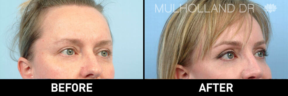 Brow Lift - Before and After Gallery – Photo 5