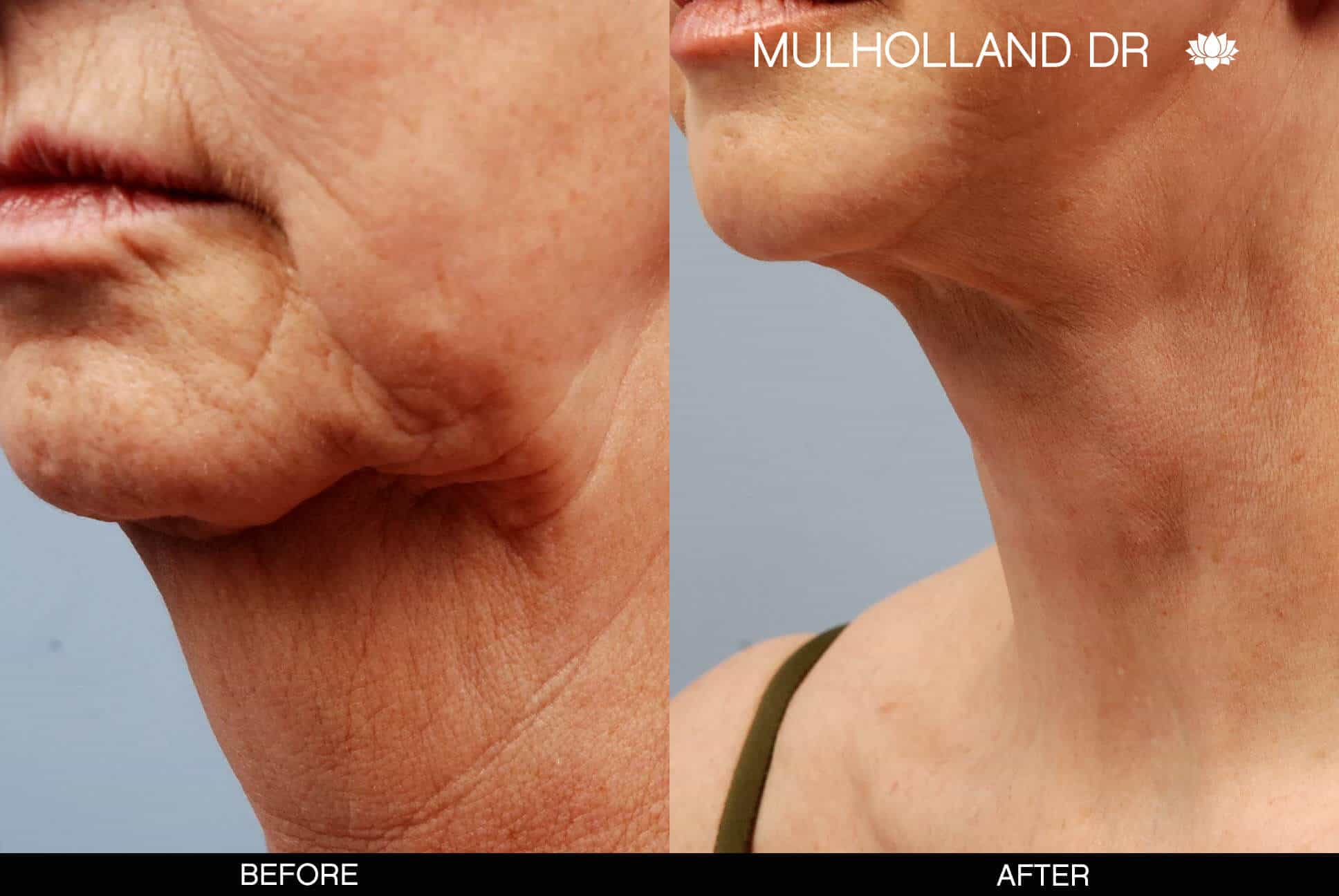 Neck Lift- Before and After Gallery – Photo 5