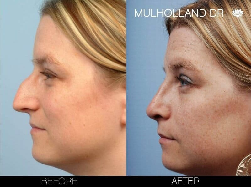 Rhinoplasty - Before and After Gallery – Photo 5