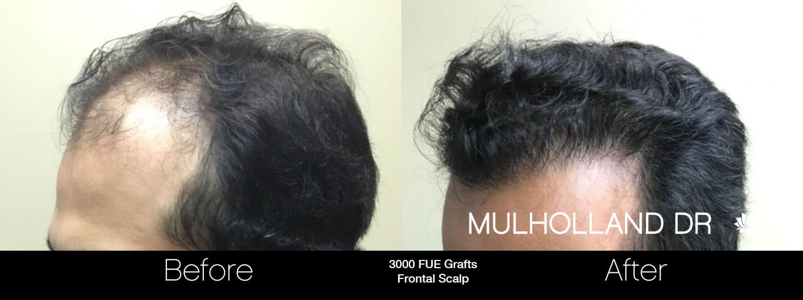 FUE Hair Male - Before and After Gallery – Photo 5