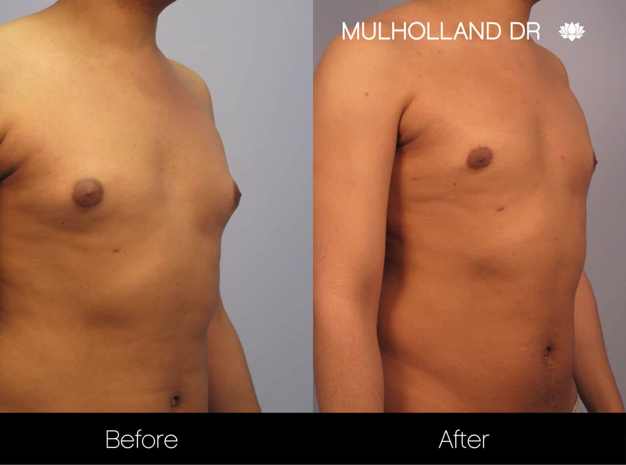 Gynecomastia Surgery (Male Breast Reduction) - Before and After Gallery – Photo 8