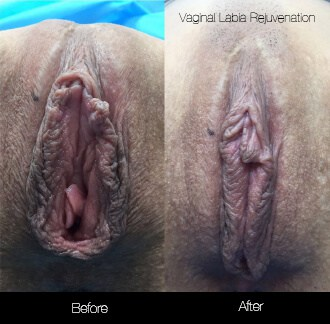 Vaginal Rejuvenation - Before and After Gallery – Photo 5