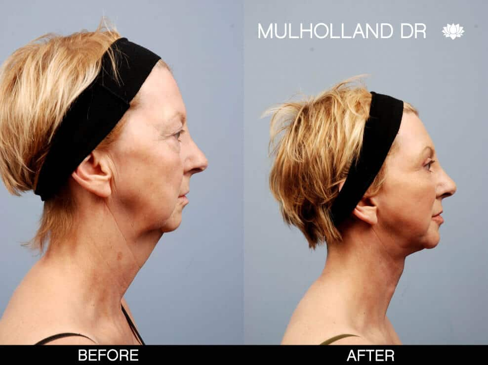 Cheek Lift - Before and After Gallery – Photo 15