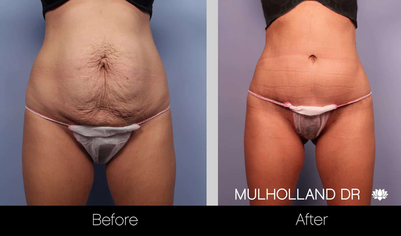 Mini Tummy Tuck - Before and After Gallery – Photo 6