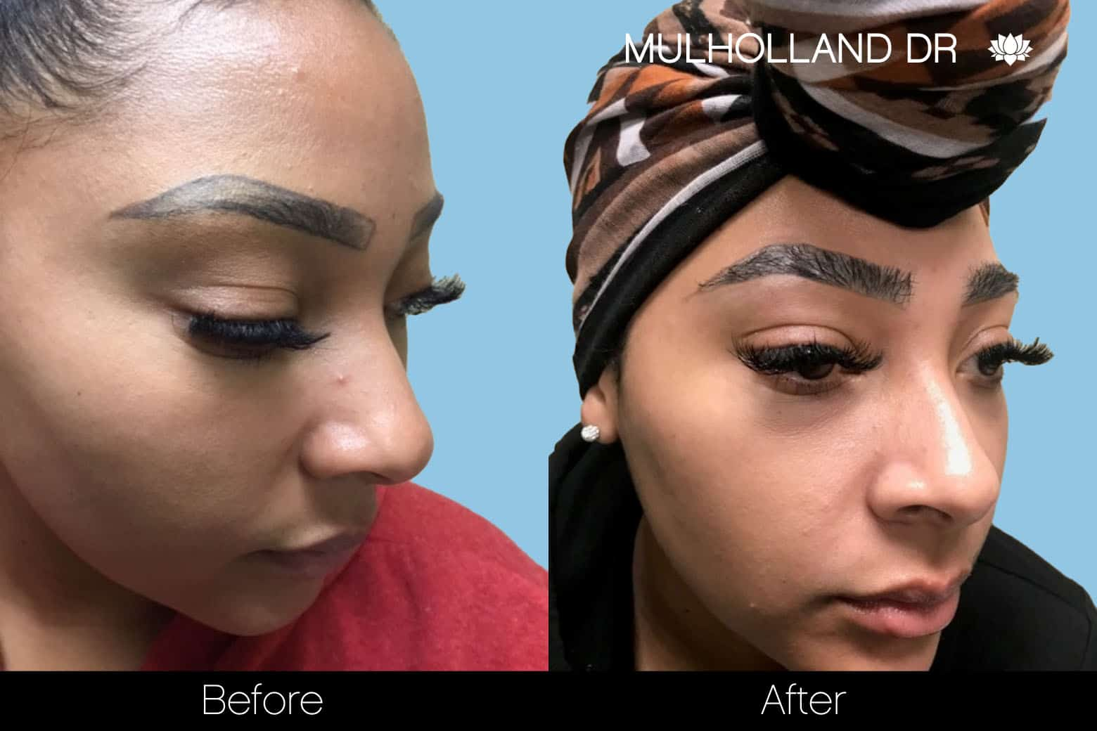 Eyebrows FUE - Before and After Gallery – Photo 6