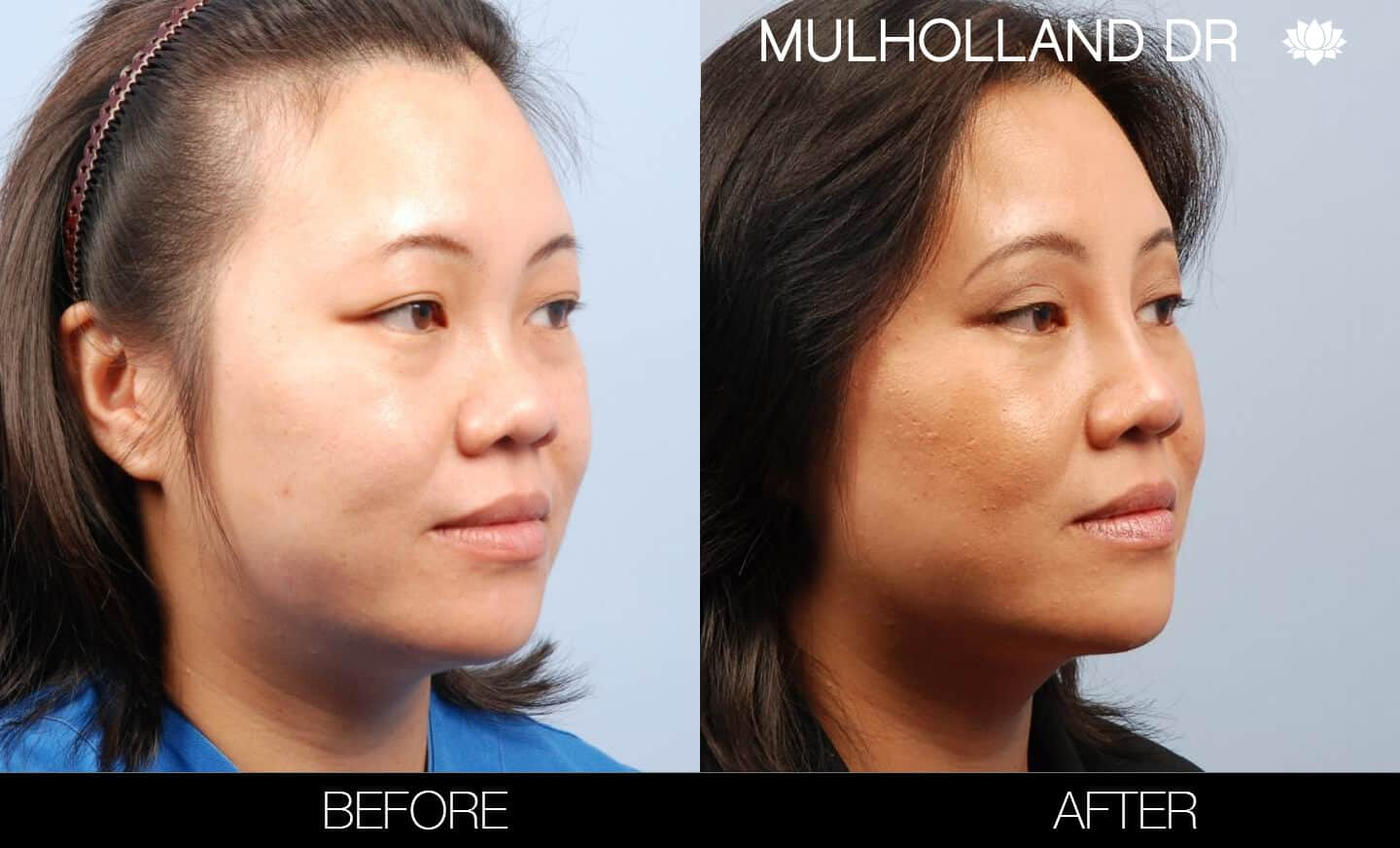 Asian Blepharoplasty - Before and After Gallery – Photo 6