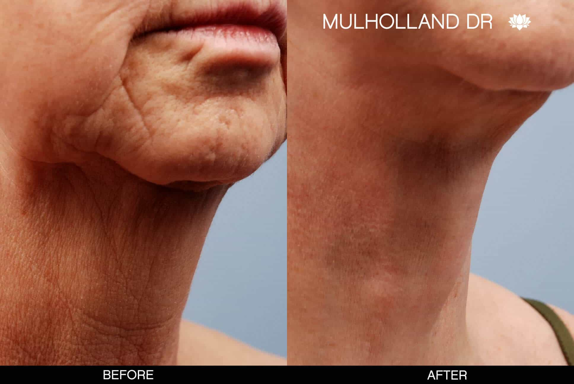 Neck Lift- Before and After Gallery – Photo 6