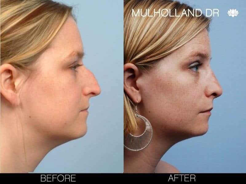 Rhinoplasty - Before and After Gallery – Photo 6