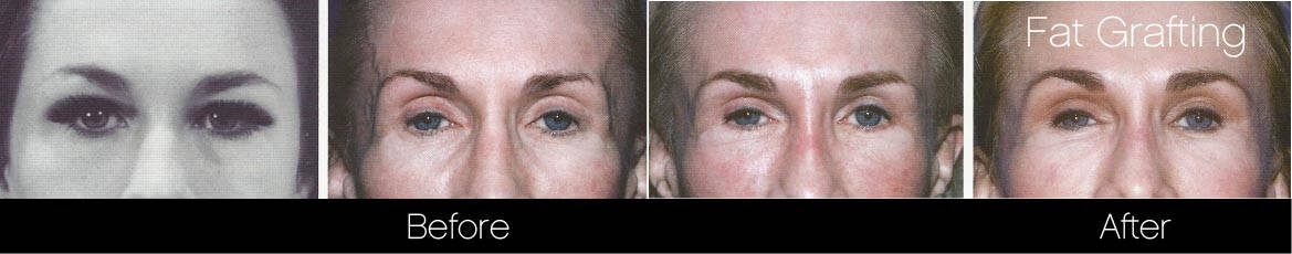 Facial Fat Transfer - Before and After Gallery – Photo 6