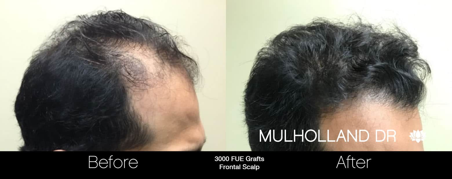 FUE Hair Male - Before and After Gallery – Photo 6