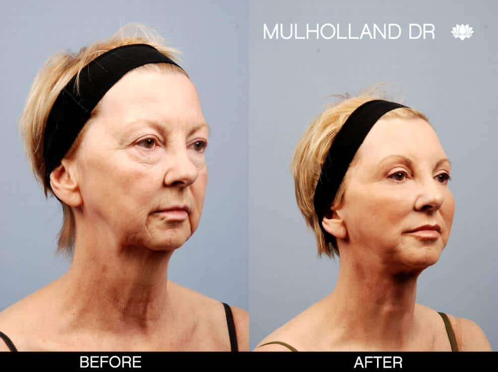 Cheek Lift - Before and After Gallery – Photo 16